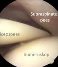 behandeling ruptuur bicepspees